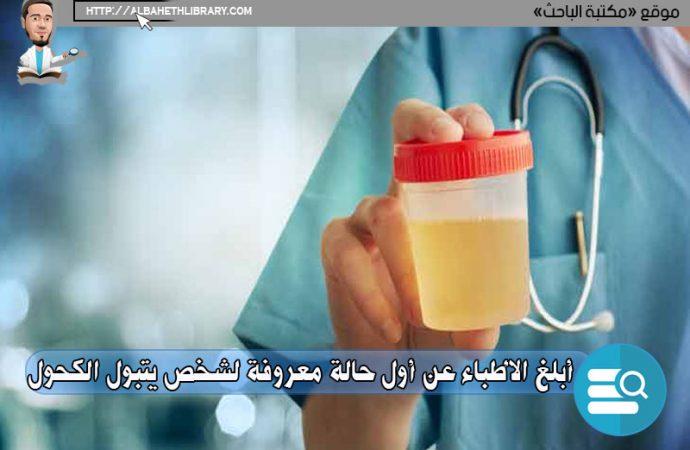 أبلغ الأطباء عن أول حالة معروفة لشخص يتبول الكحول