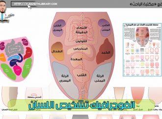 انفوجرافيك تشخيص اللسان